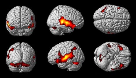 Mediante las imágenes por resonancia magnética funcional (IRMf), se pueden ver las zonas del cerebro que actúan cuando un paciente realiza una determinada actividad